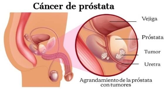schistosomiasis worm type tratamentul durerilor de gât